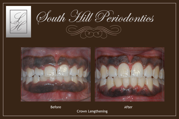 South Hill Periodontics Crown Lengthening